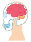 脳のむくみ