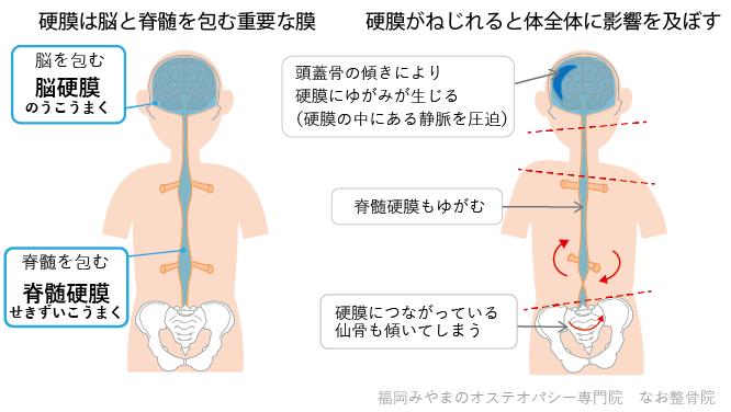脳硬膜と脊髄硬膜の捻じれ