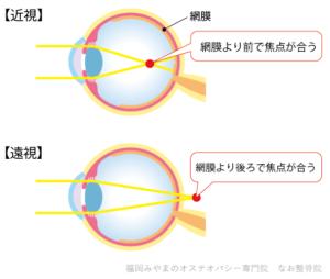 近視と遠視