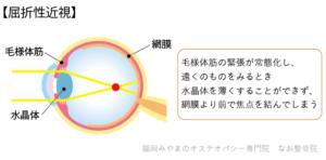 屈折性近視