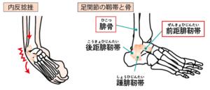 内反捻挫・足関節の靭帯と骨