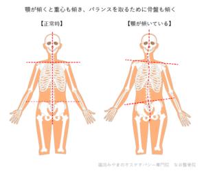 顎が傾くと骨盤も傾く